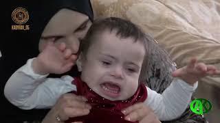РОФ им  А Х Кадырова оказал помощь на иногороднее лечение семьям, в которых есть страдающие тяжёлыми